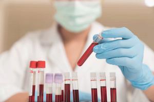 PCR, proteina C reattiva: cos'è e qual è la sua funzione