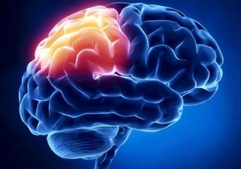 Un gel per riparare i danni al cervello provocati dall'ictus