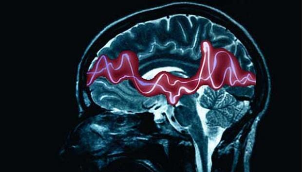Attacchi epilettici, scoperto un congegno che può prevederli
