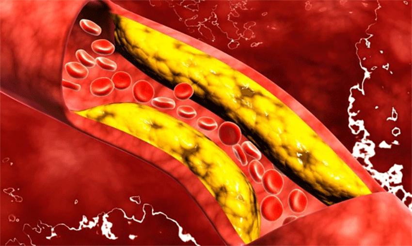 Colesterolo: dopo infarto o ictus, troppi pazienti lo dimenticano